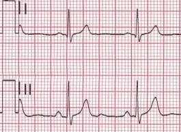 regular EKG