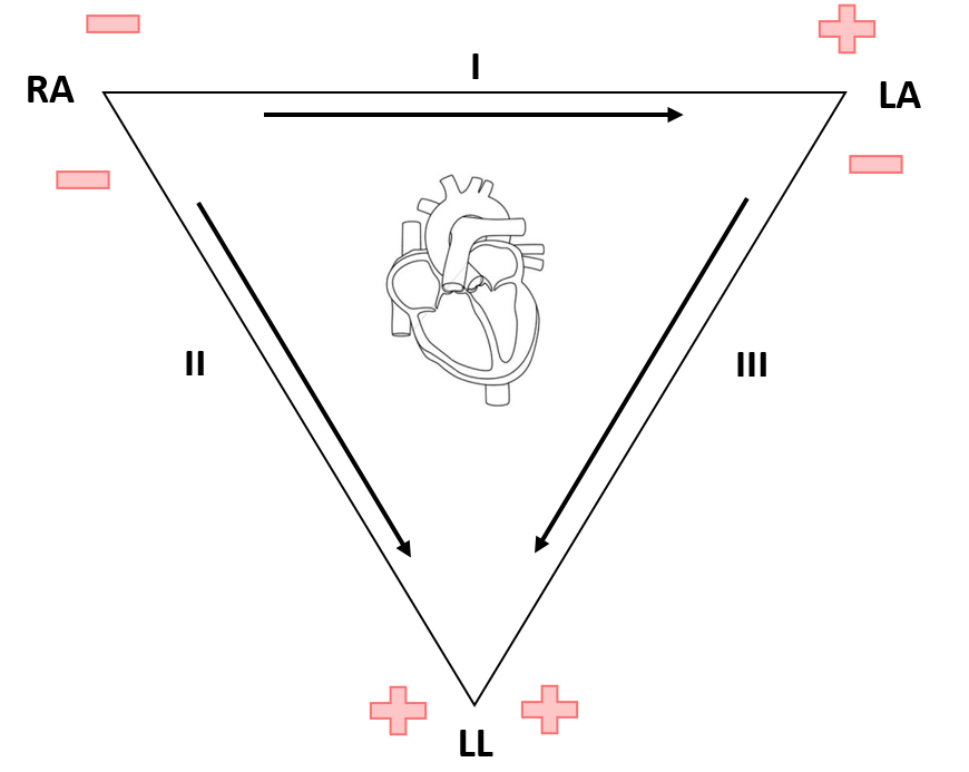 The Ecg Leads Polarity And Einthovens Triangle The Student