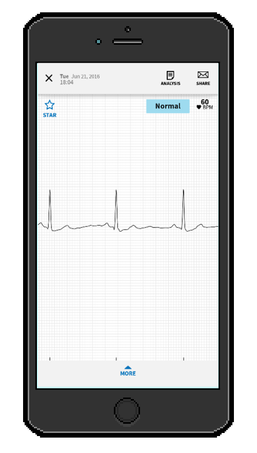 Review: AliveCor Mobile ECG Monitor (3rd gen)
