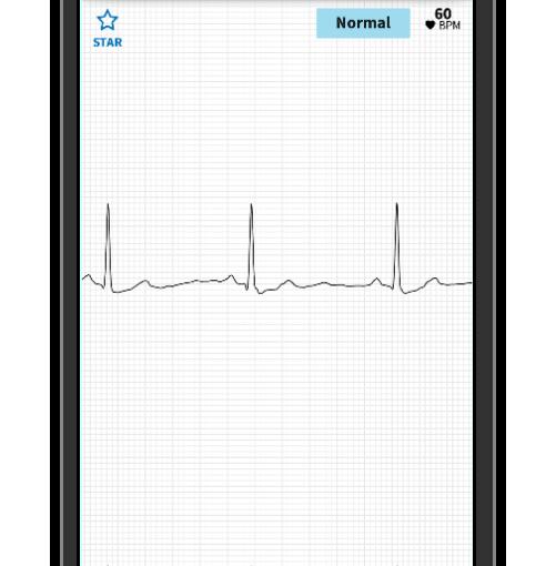 Review: AliveCor Mobile ECG Monitor (3rdgen)
