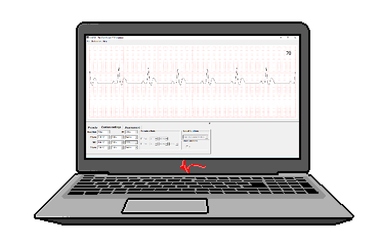 Review: simECG: ECG Simulator v1.186