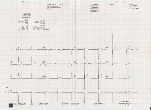 My ECG LVH sinus brady