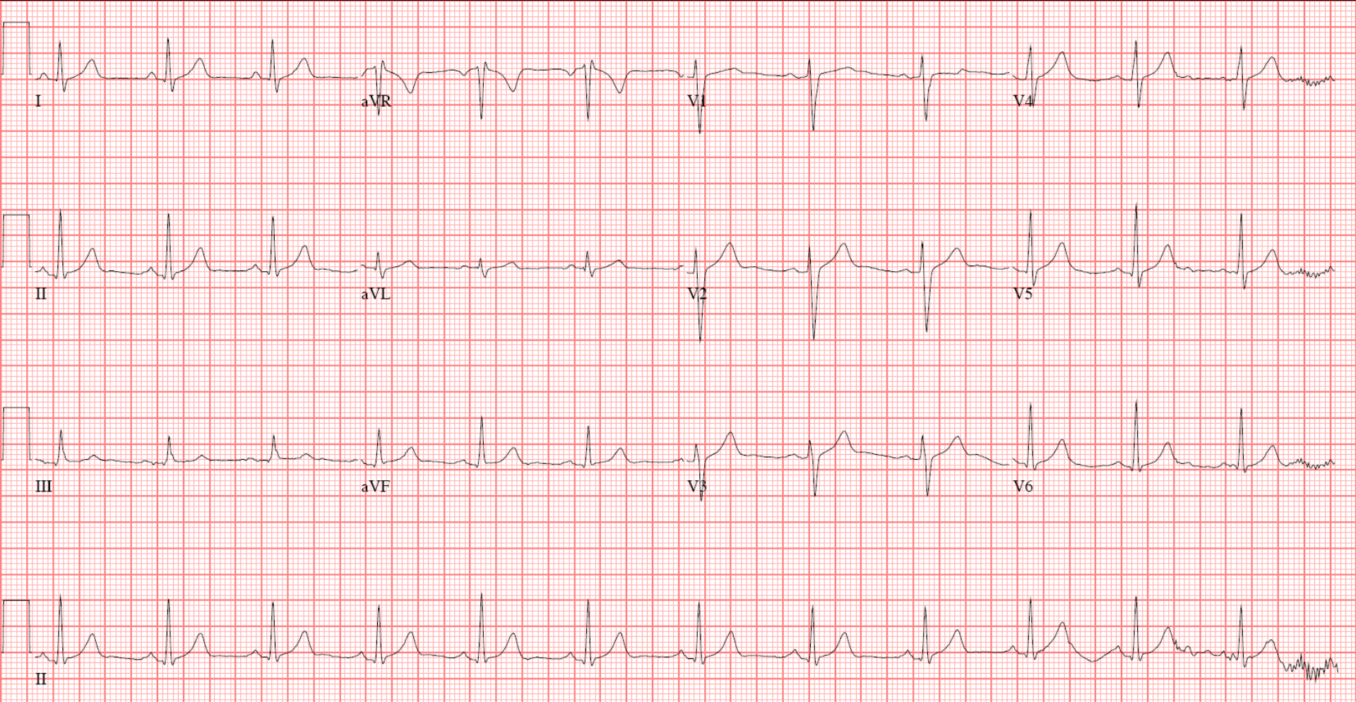 Abnormal 12 lead ecg