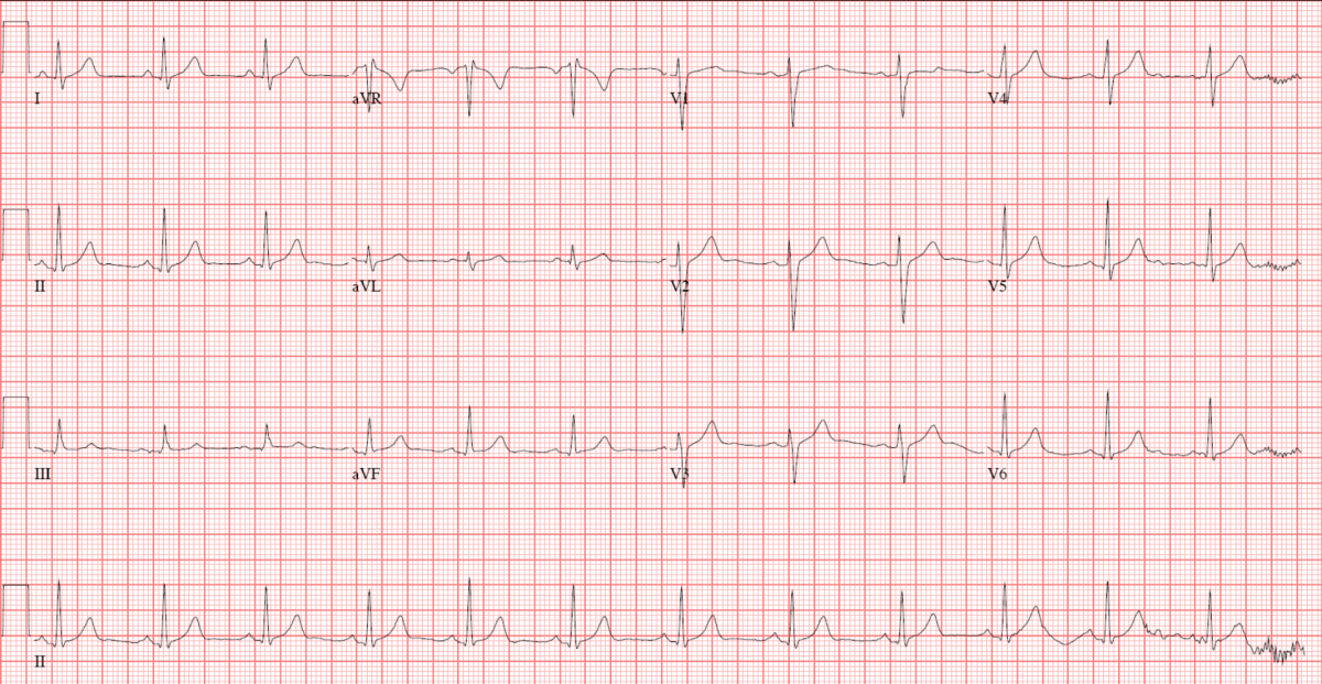 the normal ecg  u2013 the student physiologist