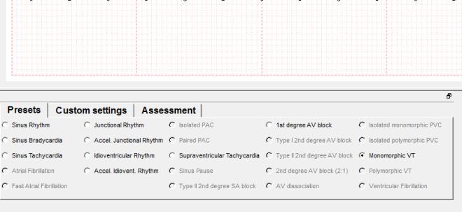 simECG screen 2 (2)