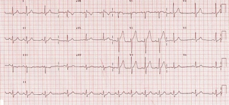 sinus-arrhythmia
