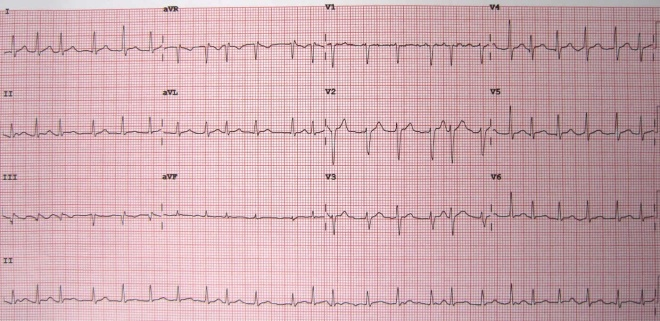 12-lead-ECG-showing-Atrial-Fibrillation-at-approximately-150-beats-per-minute.jpg