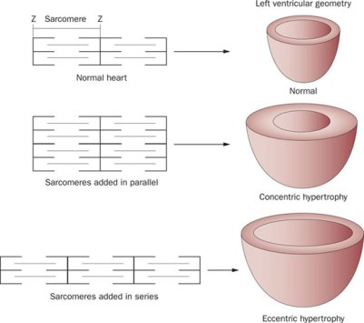Figure-4-Concentric-and-eccentric-hypertrophy-can-be-distinguished-by-the-orientation-in