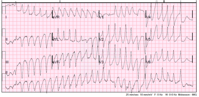 12-lead in polymorphic VT-later