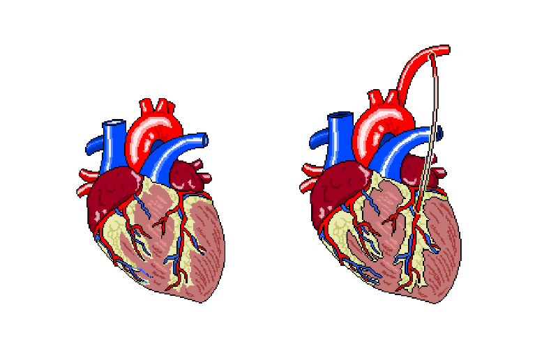 Coronary Artery Bypass Graft and Mitral Valve Repair