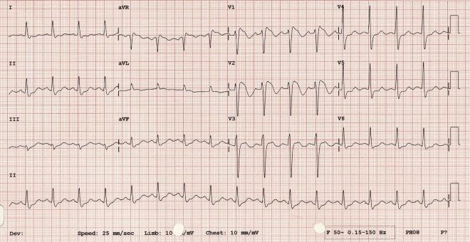 Brugada ECG.jpg