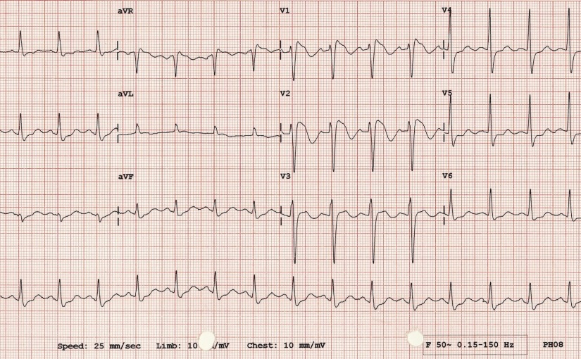 Clinical and Electrophysiological Profile of Brugada ...