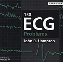 150-ecg-problems-080135817