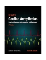 bennett-s-cardiac-arrhythmias