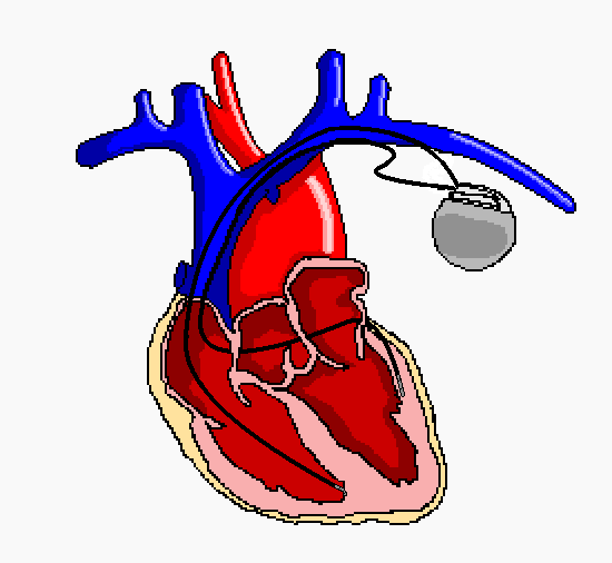 Ethical Implications of Switching Off a Pacemaker