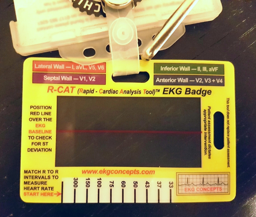 Review: R-CAT ECG Analysis Badge