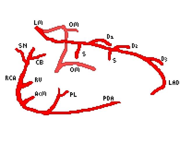 Cardiac coronary anatomy
